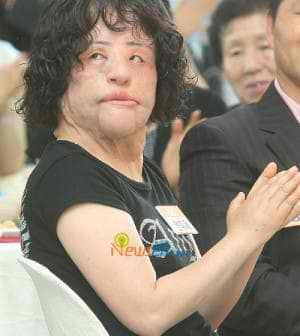 Hang Mioku after her plastic surgery at an event,