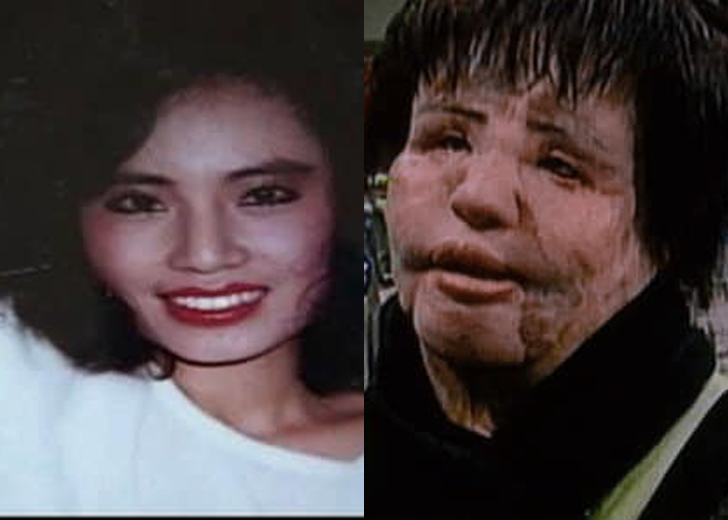 What Is Hang Mioku Doing Now? Plastic Surgery Took Her Close to Death